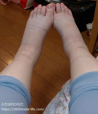 腎盂腎炎でむくんだ足