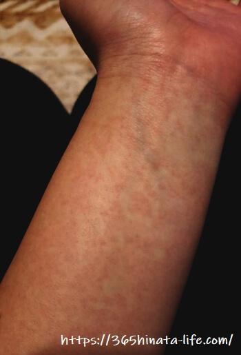 腕に出たりんご病の発疹